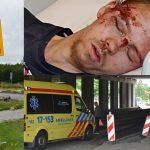 Getuigenoproep: Wie hielp Jimmy nadat hij ernstige verwondingen opliep aan de 1e Barendrechtseweg?